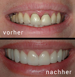 Herbstaktion 2015 in der Globe Dental Zahnklinik