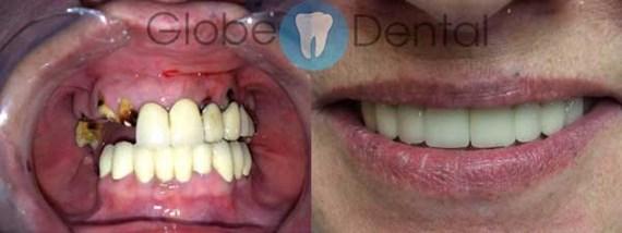 Zahnbehandlungen Vorher - Nachher 1