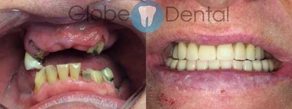 Zahnbehandlungen Vorher - Nachher 3