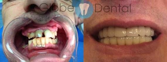 Zahnbehandlungen Vorher - Nachher 4
