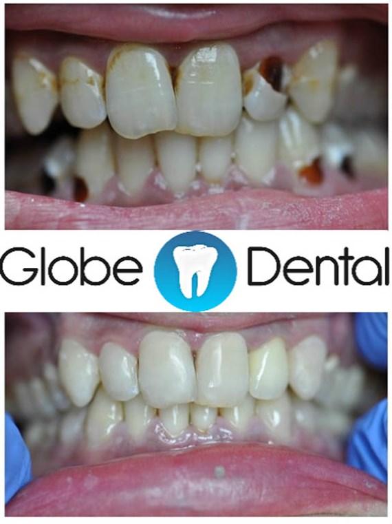 Zahnbehandlungen Vorher - Nachher 8