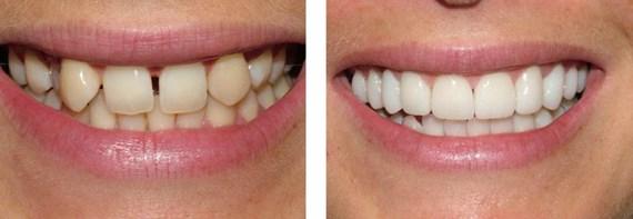 Zahnbehandlungen Vorher - Nachher 5