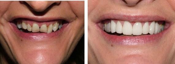 Zahnbehandlungen Vorher - Nachher 6