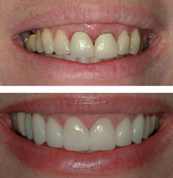 Zahnbehandlungen Vorher - Nachher 7