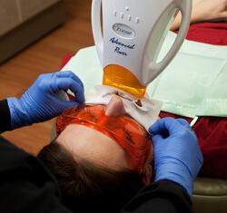 Whiting mit Zoom2 Tooth Whitening Methode